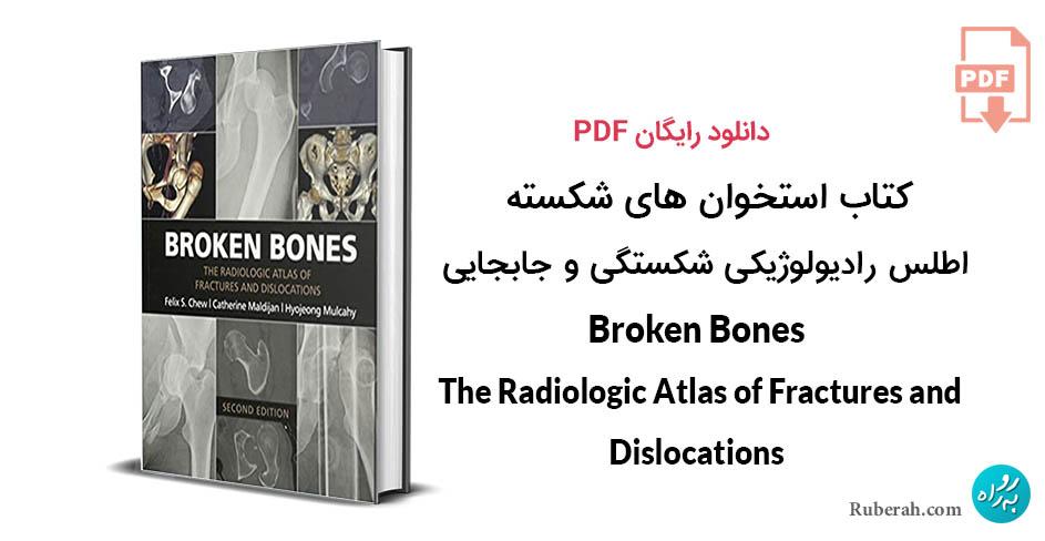 کتاب استخوان های شکسته : اطلس رادیولوژیکی شکستگی ها و جابجایی ها
